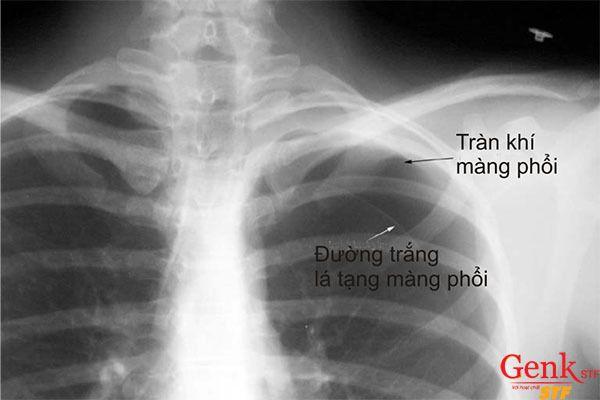 Ảnh chụp X-quang tràn dịch màng phổi