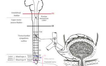 Bàng quang thần kinh là gì và cách điều trị ra sao?