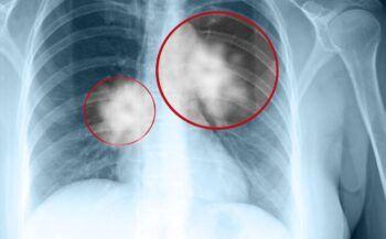 Chăm sóc bệnh nhân ung thư phổi sau điều trị