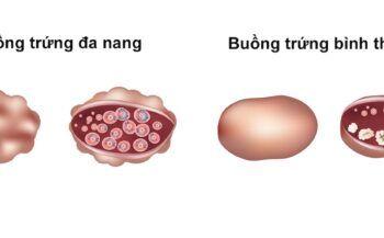 Dấu hiệu nhận biết hội chứng buồng trứng đa nang