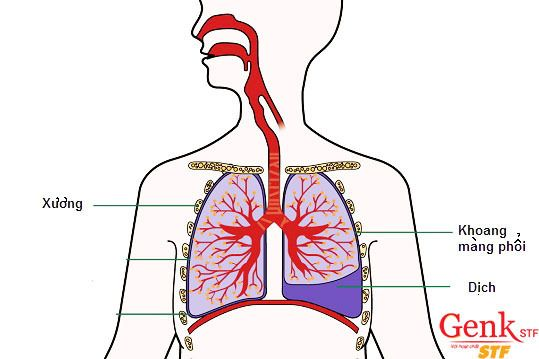 Ở nước ta số bệnh nhân mắc chứng tràn dịch màng phổi khá nhiều