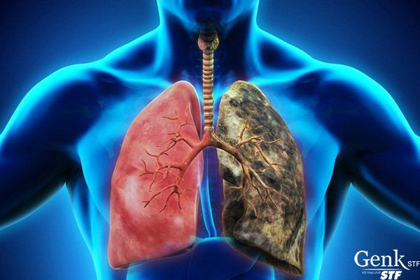 Điều trị bệnh ung thư phổi