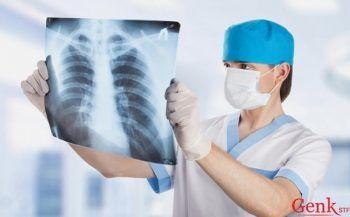 Một số thông tin hữu ích về bệnh ung thư phổi tế bào nhỏ