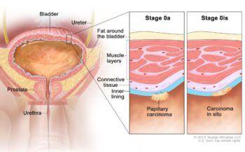 Chi tiết các giai đoạn ung thư bàng quang