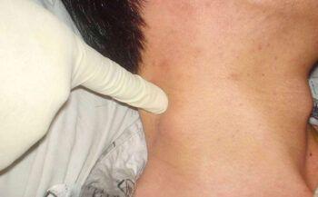 Mắc bệnh ung thư hạch có chữa được không?