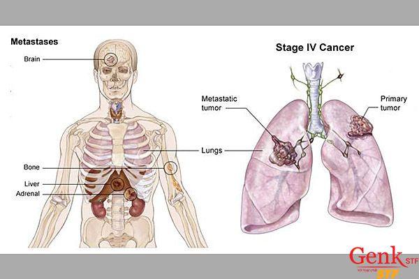 Ung thư phổi di căn xương được xác định là giai đoạn IV.