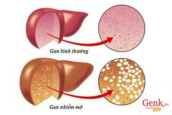 Gan nhiễm mỡ là bệnh thường gặp ở gan
