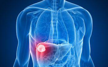 Những câu hỏi liên quan đến ung thư gan ai cũng muốn biết