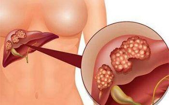 Ung thư gan nguyên phát: biểu hiện và cách điều trị