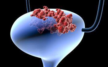 Ung thư tinh hoàn sống được bao lâu?