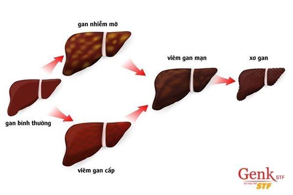 Xơ gan là nguyên nhân ung thư gan hàng đầu
