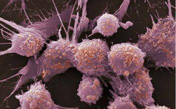 Điểm danh những dấu hiệu ung thư tuyến tiền liệt hàng đầu