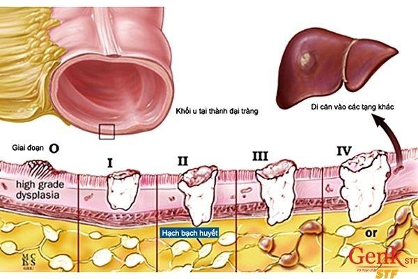Các giai đoạn phát triển của bệnh ung thư đại tràng