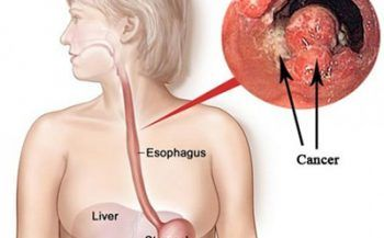 Ung thư thực quản ở giai đoạn 2