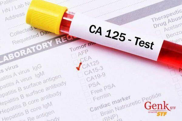 CA125 là một chỉ số giúp đánh giá ung thư buồng trứng