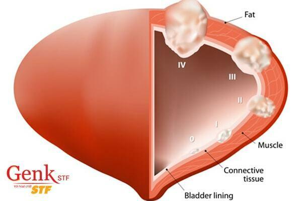 Ung thư bàng quang giai đoạn đầu - giai đoạn cuối