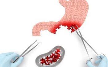 Ung thư dạ dày – Dễ phòng ngừa nhưng không dễ chữa
