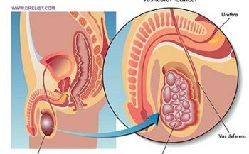 Một số biểu hiện của bệnh Ung thư tinh hoàn giai đoạn cuối