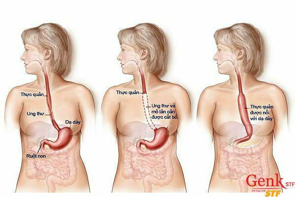 Kết hợp các loại điều trị khác nhau: xạ trị, hóa trị và phẫu thuật để điều trị ung thư thực quản