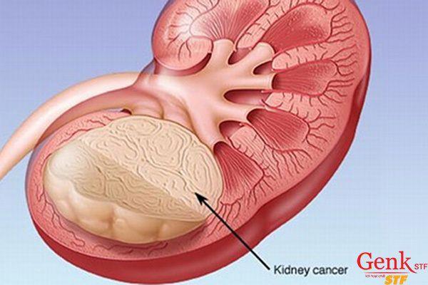 Cách phòng ngừa ung thư thận