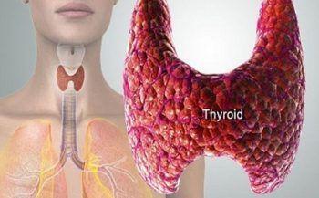 Dấu hiệu và các giai đoạn bệnh ung thư tuyến giáp