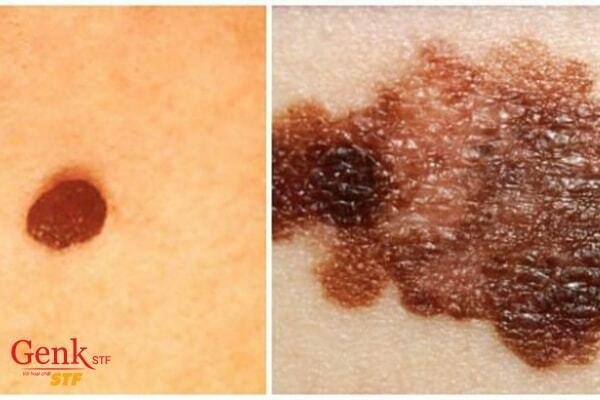 Nốt ruồi lạ là dấu hiệu ung thư da điển hình