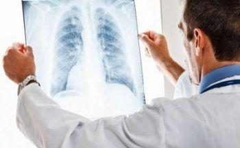 Dấu hiệu và triệu chứng của bệnh ung thư phổi
