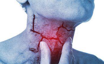 Phương pháp điều trị ung thư thanh quản hiệu quả
