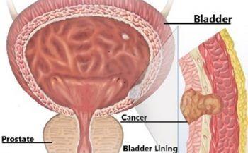 Ung thư bàng quang di căn đến những bộ phận nào?