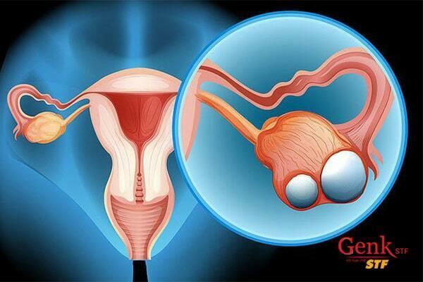 Ung thư buồng trứng là gì?