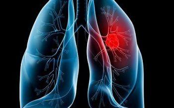 Nguyên nhân và cách phòng ngừa ung thư phổi