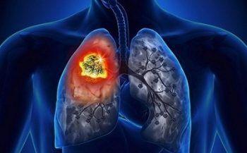 Tìm hiểu về bệnh ung thư phổi