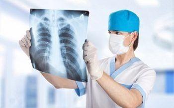 Bệnh ung thư phổi giai đoạn đầu có chữa được không?