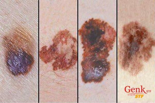 Vết bớt bất thường có thể là dấu hiệu nhận biết ung thư da