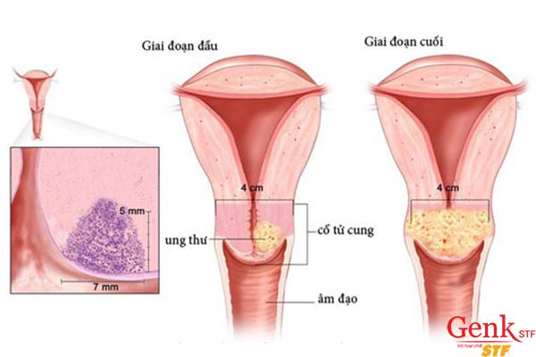 Tiêm Vaccine ngừa ung thư cổ tử cung càng sớm sẽ đạt hiệu quả càng cao.