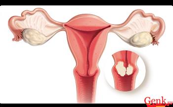 10 lưu ý khi tiêm vaccine phòng ngừa ung thư cổ tử cung