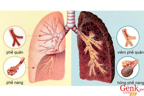 Bệnh thư phổi có lây không?