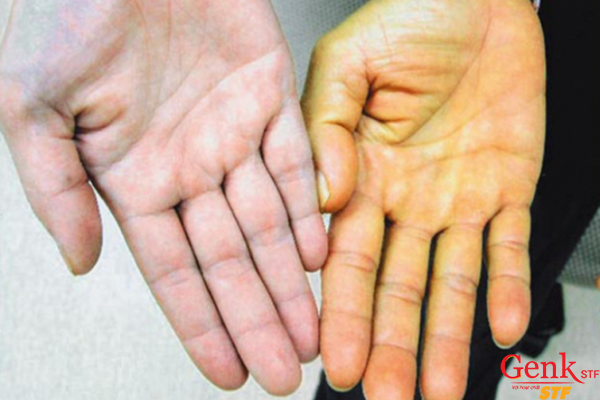 Chứng vàng da là dấu hiệu đặc trưng của triệu chứng ung thư gan giai đoạn cuối