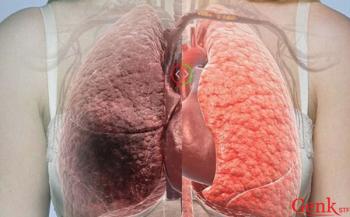 Dấu hiệu ung thư gan giai đoạn cuối bạn nên biết