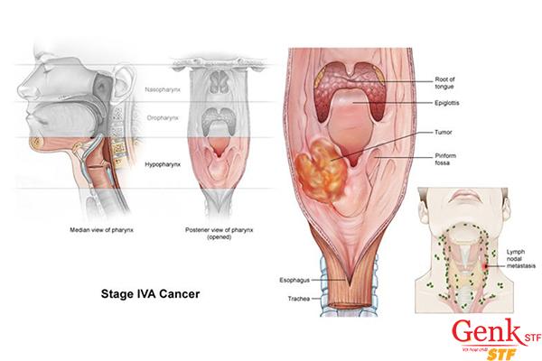 Dấu hiệu ung thư thực quản giai đoạn cuối