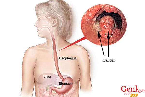 Tỷ lệ sống của bệnh nhân ung thư thực quản giai đoạn cuối trung bình khoảng từ 4 – 6 tháng.