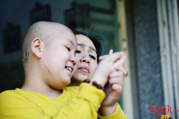 Phương pháp phẫu thuật là phương pháp hiếm khi được sử dụng để điều trị ung thư máu ở trẻ em.