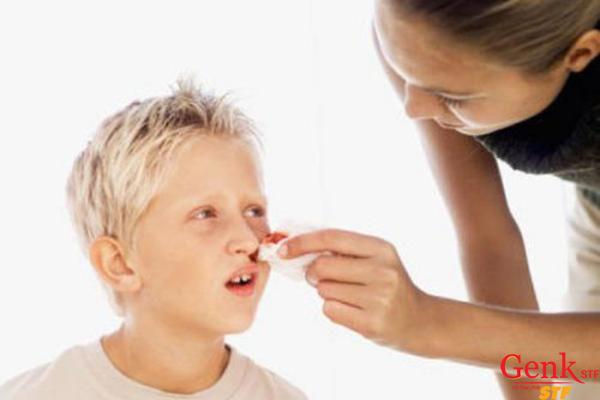 Dễ chảy máu hoặc bầm tím là 1 trong những dấu hiệu ung thư máu ở trẻ nhỏ