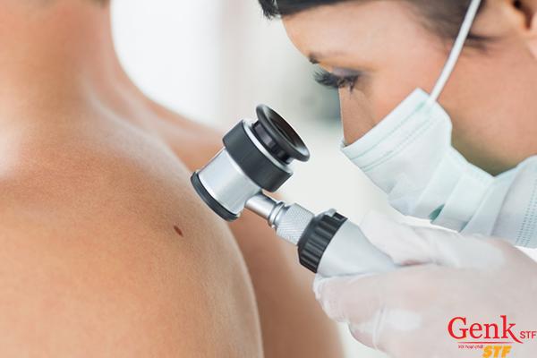 Sự thay đổi bất thường trên da cũng là 1 trong những dấu hiệu bệnh ung thư không thể bỏ qua