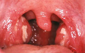 Dấu hiệu ung thư vòm họng cần đặc biệt chú ý
