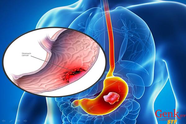 Dấu hiệu sớm của Ung thư dạ dày