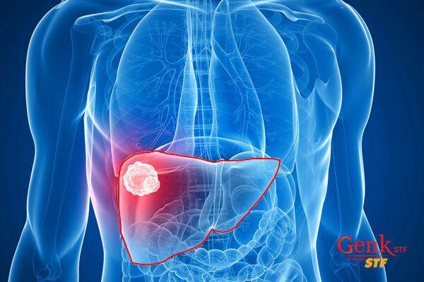 Ung thư gan có tỷ lệ người mắc ung thư đứng số 1 Việt Nam