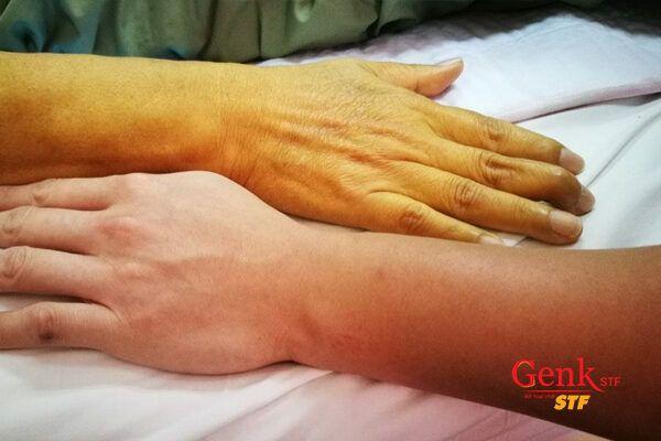 Vàng da là biểu hiện đầu tiên báo hiệu ung thư gan