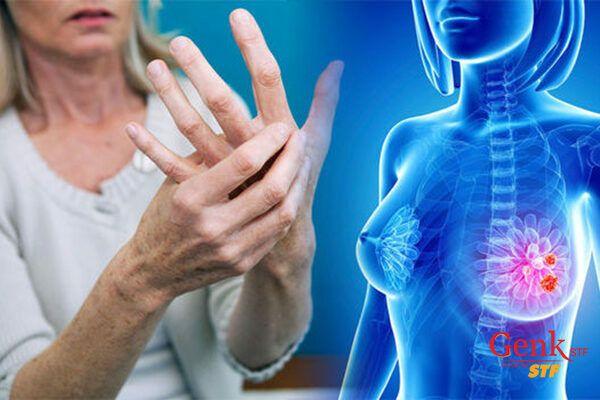 Sức khỏe của xương đặc biệt quan trọng với bệnh nhân ung thư vú