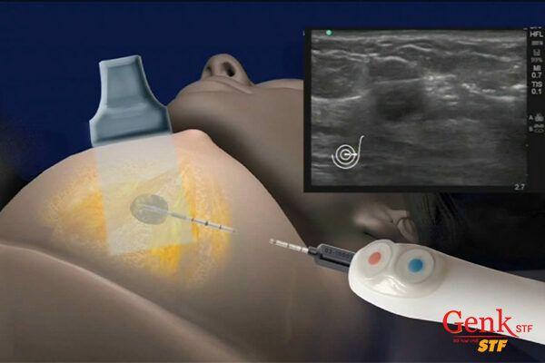 Ống kim loại được đưa vào ngực bệnh nhân để đóng băng khối u